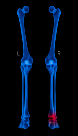 X-ray of Human Leg bone posterior view red highlights in arthritis leg Ankle pain area- 3D Medical and Biomedical illustration- Healthcare- Human Anatomy and Medical Concept- Blue tone color