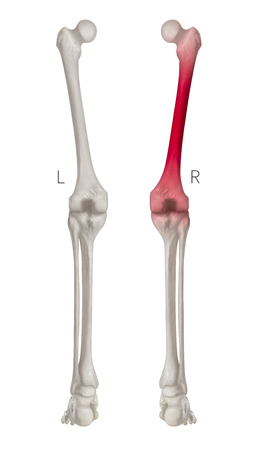 Human Leg bone left and right- Posterior view red highlights in Femur bone pain area- 3D Medical- Biomedical illustration- Human Anatomy and Medical Concept- Isolated on white background. Imagens