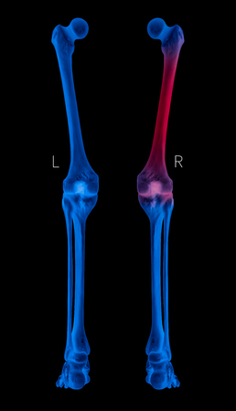 X-ray of Human Leg bone left and right- Posterior view red highlights in Femur bone pain area-3D Medical and Biomedical illustration-Healthcare-Human Anatomy and Medical Concept- Blue tone color