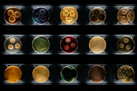 Different types of bacteria, molds and fungi in petri dishes