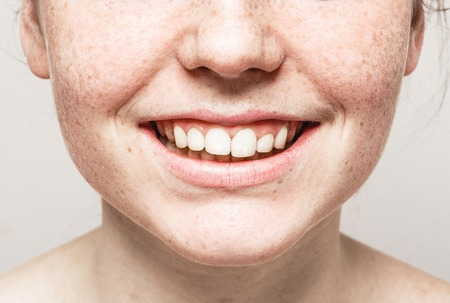 Zähne lächeln Mund Junge schöne Sommersprossen Frau Gesicht Porträt mit gesunder Haut. Studioaufnahme.
