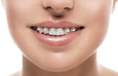 Bretels tanden mond orthodontie vrouw. Close-up studio-opname. Stockfoto