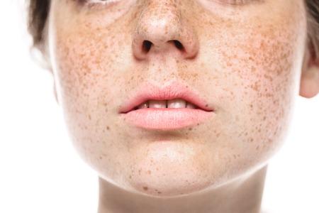 Tanden glimlach mond Jonge mooie sproeten vrouw gezicht portret met een gezonde huid. Studio opname. Stockfoto