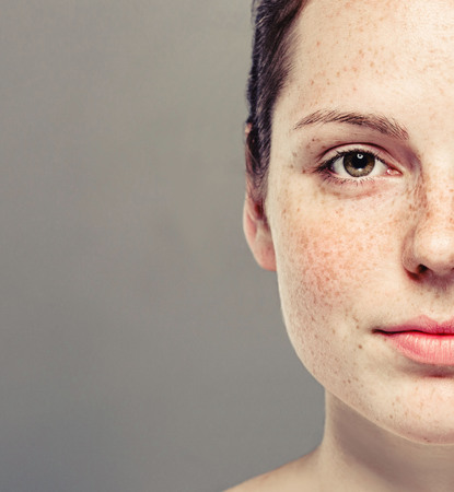 Young beautiful freckles woman half face portrait with healthy skin.