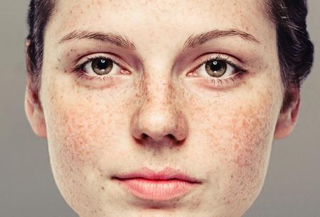 健康な皮膚の若い美しいそばかす女の顔の肖像画。灰色の背景。スタジオ撮影します。