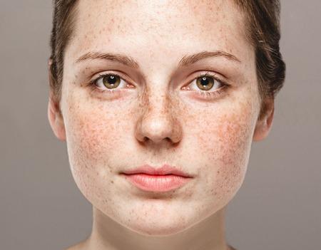 Retrato bonito novo da cara da mulher das sardas com pele saudável. Fundo cinza. Tiro do estúdio. Foto de archivo - 62776494