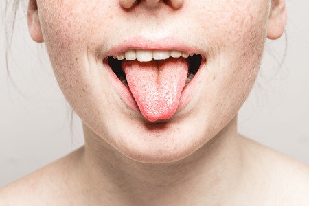 Tongue open mouth Young beautiful freckles woman face portrait with healthy skin. Studio. Stock Photo