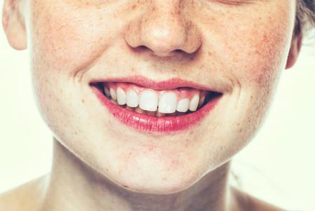 입술과 코 젊은 여자 freckle 건강 한 피부와 행복 젊은 아름 다운 스튜디오 초상화. 사진관.