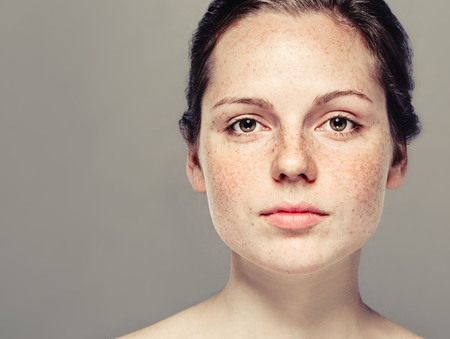Young beautiful freckles woman face portrait with healthy skin. Standard-Bild