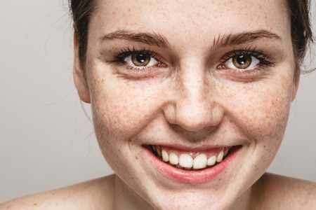 Young beautiful freckles woman face portrait with healthy skin. Stock Photo
