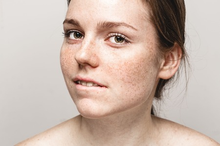 Young beautiful freckles woman face portrait with healthy skin bite lips.