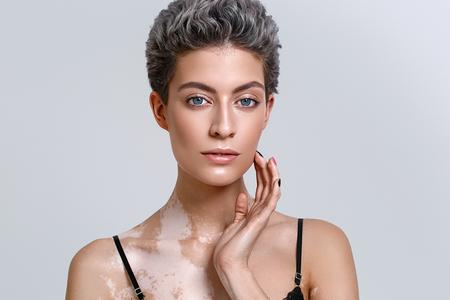 Vitiligo 여자 아름다움 초상화입니다. 스튜디오 촬영. 회색 배경입니다.