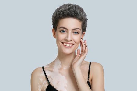 autoimmune: Vitiligo woman beauty portrait. Studio shot. Gray background.