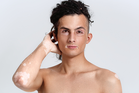Vitiligo man portrait. Studio shot. Gray background. Stock Photo - 79476178