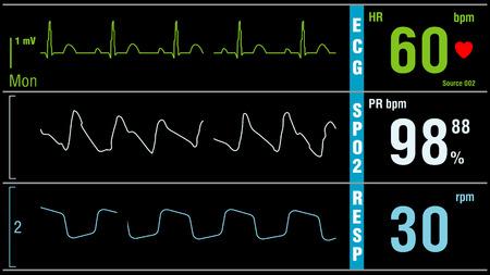 O monitor do paciente exibe sinais vitais eletrocardiograma ECG EKG, saturação de oxigênio SPO2 e respiração. Exame médico. Foto de archivo