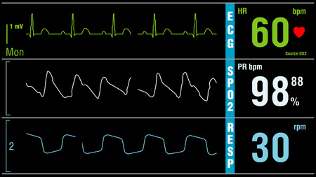 Patient monitor displays vital signs ECG electrocardiogram EKG, oxygen saturation SPO2 and respiration. Medical examination.