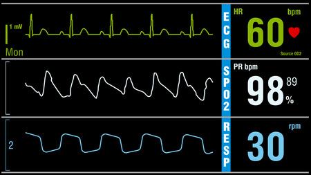 signos vitales: monitor muestra signos vitales del paciente electrocardiograma, ox�geno SPO2 la saturaci�n y la respiraci�n. ilustraci�n vectorial examen m�dico.