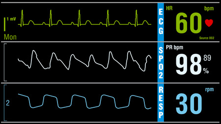 signos vitales: Patient monitor displays vital signs ECG electrocardiogram EKG, oxygen saturation SPO2 and respiration. Medical examination vector illustration.