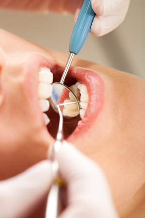 Dentist is checking patients teeth for plaque and caries photo
