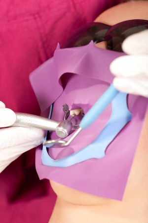 Dentist is drilling one isolated tooth