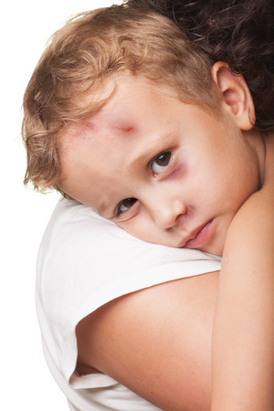 Beaten boy with shiner hugged by mother Stock Photo