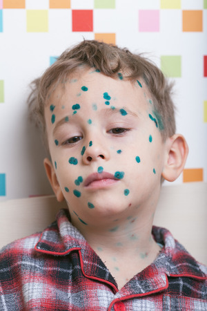 varicella: Portrait of a pensive boy with chicken-box (green dots made with blakstonia or brilliant essence are used to distinguish between new and old pock-marks)