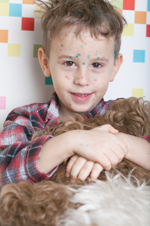 distinguish: Portrait of a playful and friendly boy with chicken-box (green dots made with blakstonia or brilliant essence are used to distinguish between new and old pock-marks)