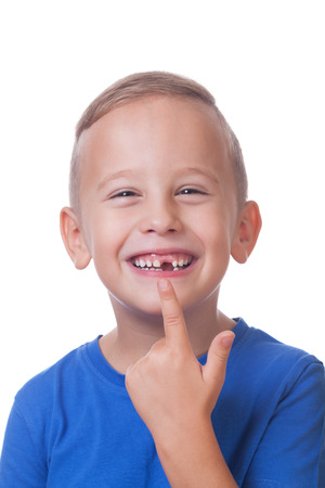 Happy toddler with minus one tooth Stock Photo
