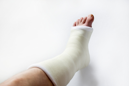 leg in plaster Stock Photo
