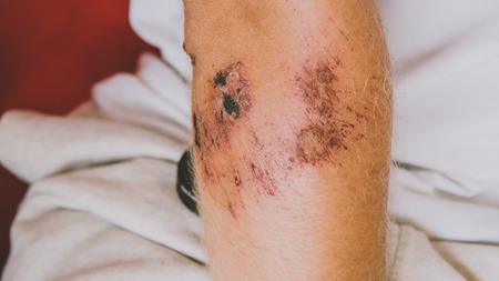 Bandaged leg after abrasion. Protect scratched body parts in travel.