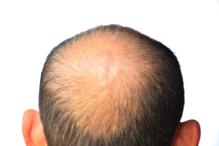 fewer: Head of man lose ones hair, glabrous on his head for elderly man Stock Photo
