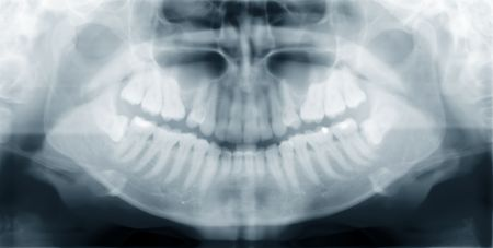 An x-ray of a human jaw, with problematic wisdom teeth