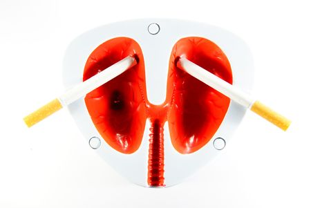 fag:   Lungs of smoker Stock Photo