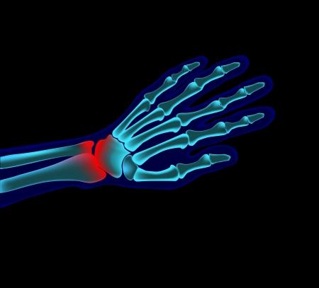broken wrist: mano dolor Vectores