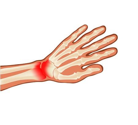 zieke de hand