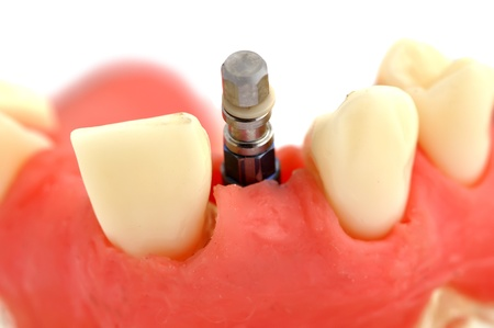 implantology: model of  jaw with implant on a white background