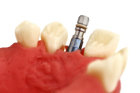 model of  jaw with implant on a white background