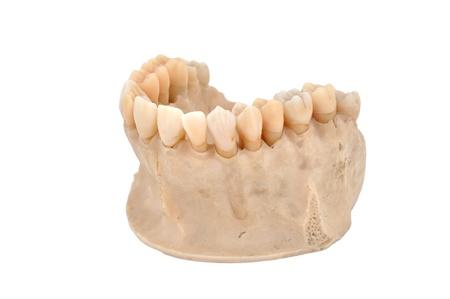 jawbone: upper human jawbone on a white background Stock Photo