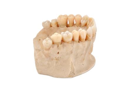 upper human jawbone on a white background Stock Photo - 14036463