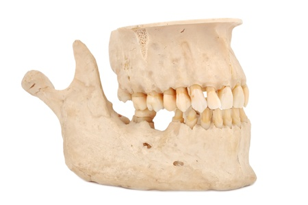 human jaw on a white background Stock Photo - 14036484
