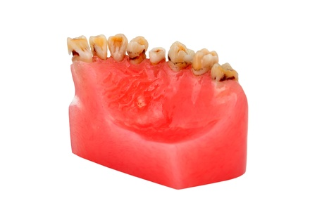 model of human jaw affected tooth decay Stock Photo - 14036541