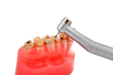 jaw affected tooth decay and dental handpiece photo