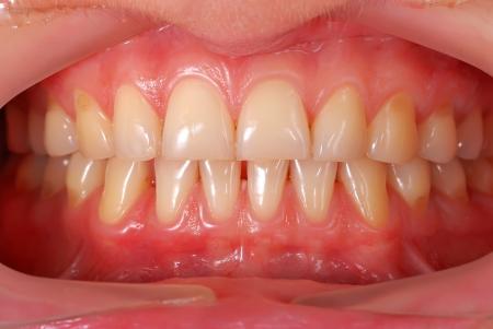 alta risoluzione denti primo piano umano
