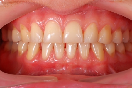 high resolution human teeth closeup