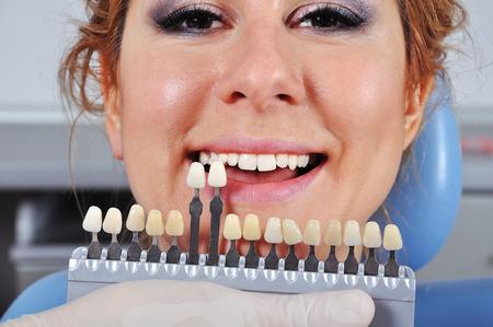protease: color dental determinaci�n con la ayuda de una gu�a de colores