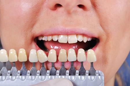 prothèse dentaire: ombre détermination dent à l'aide d'un guide de l'ombre Banque d'images
