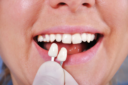 protease: diente toma de color con la ayuda de un gu�a de colores, de cerca