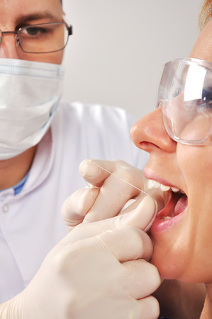 flossing: dentist cleans teeth and flossing, close up Stock Photo