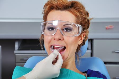 splint: dentista inserta f�rula dental mujer joven
