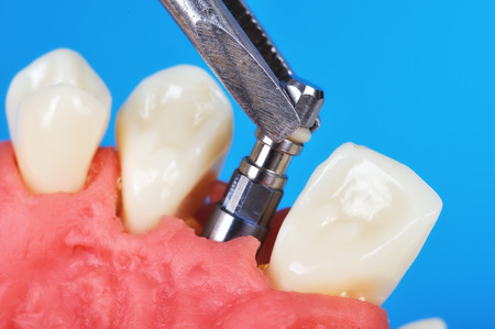 tweezers holding dental implant implanted in jaw bone